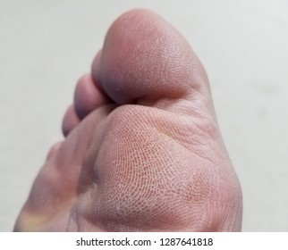 dry and flaky toes and ball of foot