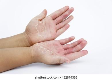 Dry hands, peel ,Infectious inflammatory skin diseases