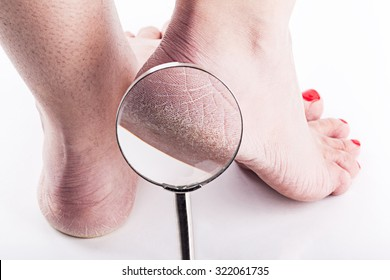 Dry heels woman on a white background close-up through a magnifying glass