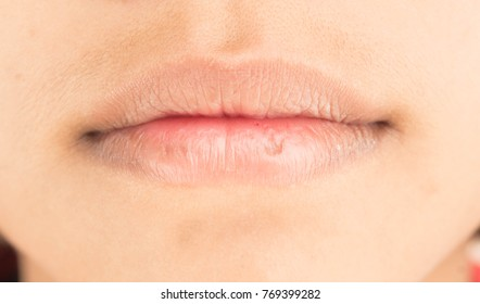 Dry lips and peeling