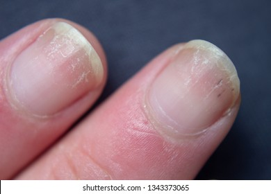 Dry Nails Images, Stock Photos & Vectors | Shutterstock