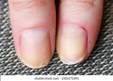 Dry skin with brittle splitting and peeling nails from biting