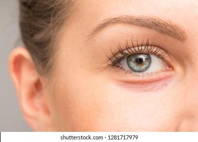 Dry skin on eyelid, macro image