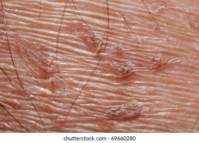 dry skin texture detail background