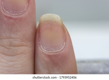 Dry yellow nails . Damaged fingernails . Chipped nails