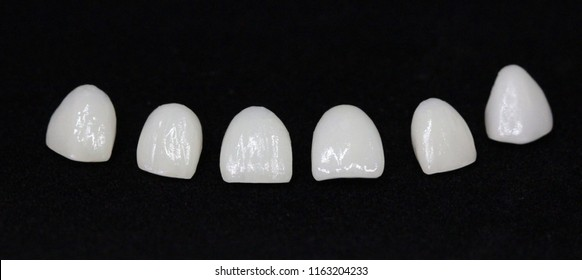 E.Max Veneers with porcelain