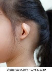 Ear rim kink, bend in the edge of a little girl's ear. Cup ear, Ear disorders