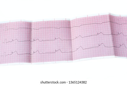 ECG with acute period of macrofocal myocardial infarction, AV block II degree type Mobitts I and rhythm of atrioventricular connection
