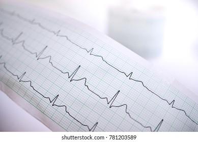 ECG analyzer report.
