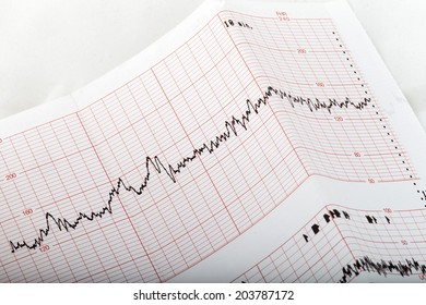 ecg graph, electrocardiogram ekg