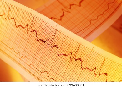 ECG graph, electrocardiogram EKG for medical backgrounds