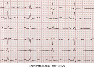 ECG, medicine, examination, heart rate graph on the paper tape, cardiogram