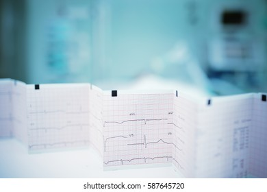 ECG on the table in hospital ward.