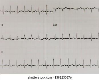 ECG results supra ventricular tachycardia.