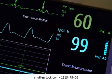 ECG sixty rate And Plethysmography of oximetry data screen.