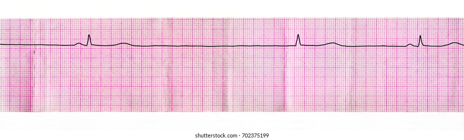 """ECG tape with stop of sinus node (""""sinus arrest"""") and replacement complex from atrioventricular junction"""