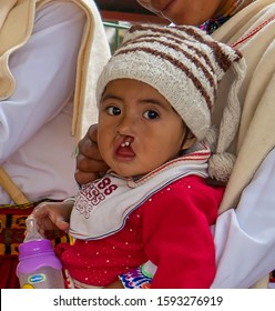 Ecuador, in the village of Sibambe near Alaousi. A young child with no operated harelip . 20 th of october 2019