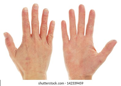 Eczema Dermatitis on Front and Back of Hand and Fingers