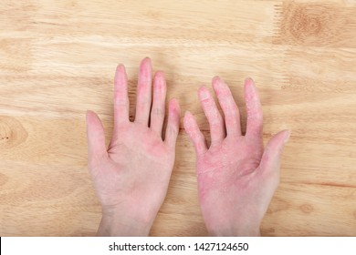 The eczema on the hand