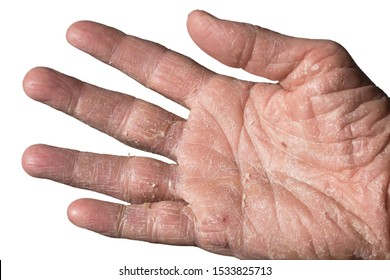 Eczema with redness, swellings, bumps and flakes on the hand and fingers of a man, caused by sun, atopy or contact allergens. Isolated on white
