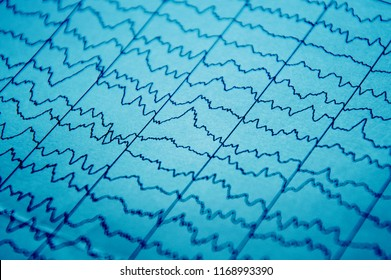EEG electro physiological monitoring metod. Electrical activity of the brain.