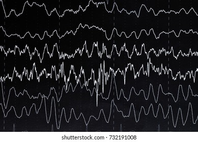 EEG electroencephalogramp monitoring method. EEG wave in human brain, Brain wave patterns on electroencephalogram, problems in the electrical activity of the brain