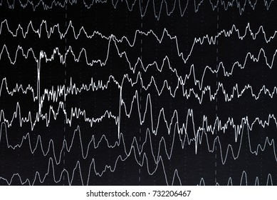 EEG electroencephalogramp monitoring method. EEG wave in human brain, Brain wave patterns on electroencephalogram, problems in the electrical activity of the brain