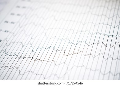 EEG electrophysiological monitoring method. EEG wave in human brain, Brain wave patterns on electroencephalogram, EEG of the child, problems in the electrical activity of the brain. selective focus