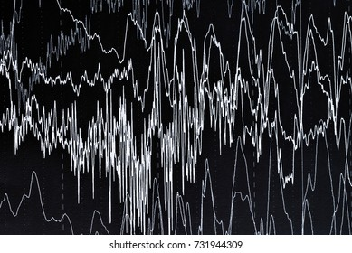 EEG electrophysiological monitoring method. EEG wave in human brain, Brain wave patterns on electroencephalogram, EEG of the child, problems in the electrical activity of the brain