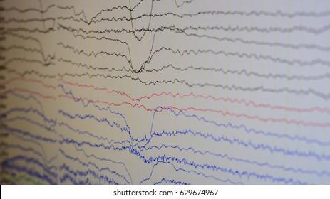 EEG wave background,Abnormal EEG,Brain wave on electroencephalogram