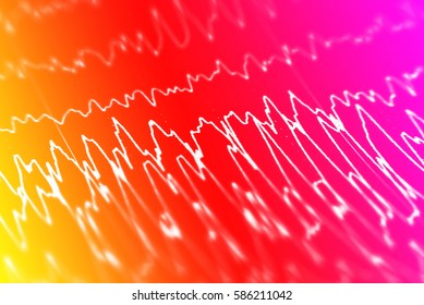 EEG wave background,Background of Abnormal EEG,Brain wave on electroencephalogram EEG for epilepsy