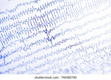 EEG wave in human brain, Brain wave patterns on electroencephalogram,problems in the electrical activity of the brain