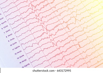 EEG wave in human brain,Abnormal EEG,Brain wave on electroencephalogram ,EEG wave background