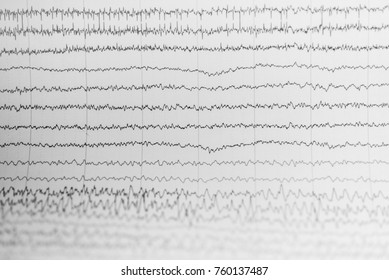EEG wave in human brain,Abnormal EEG,Brain wave on electroencephalogram ,EEG wave background