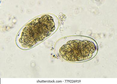 Eggs of Hookworm in stool, analyze by microscope