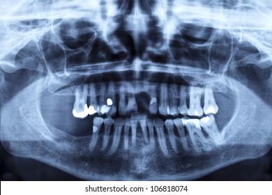 R�¶ntgenaufnahme eines menschlichen Kiefers