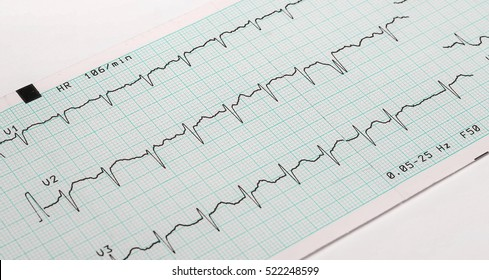 EKG arrhythmia absoluta, printout background