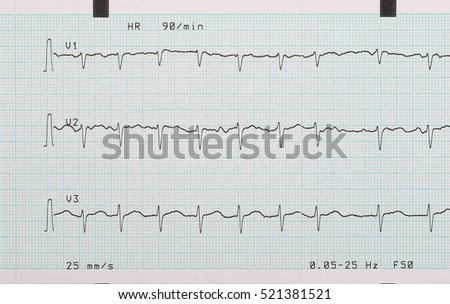 EKG Arrhythmia Absoluta Printout Background Stockfoto (Jetzt ...