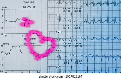 EKG or ECG (Electrocardiogram) graph report paper. EST ( Exercise Stress Test ) result and pink heart shape made from warfarin tablet pills. Warfarin pink tablets for treatment  atrial fibrillation.