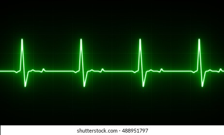 EKG Heart Line Monitor
