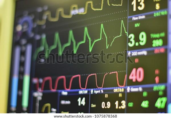EKG monitor in intra aortic balloon pump machine in icu on blur background, Brain waves in electroencephalogram, heart rate wave