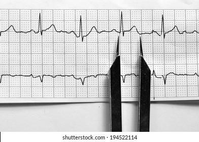 EKG Strip with Calipers/Normal Sinus Rhythm