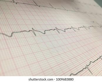 EKG/ECG of healthy subject