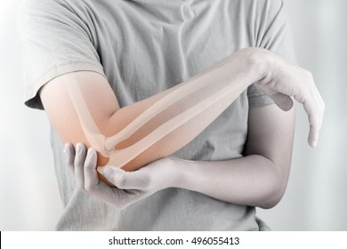 elbow bones injury white background