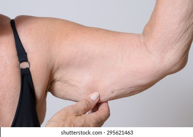 Elderly lady displaying the loose skin or flab due to ageing on her upper arm pinching it between her fingers, close up view