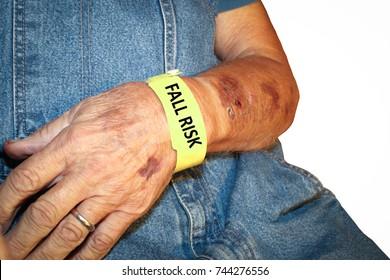Elderly man wearing fall risk bracelet around wrist