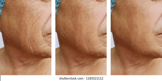 elderly men's wrinkles on the face before after the procedures