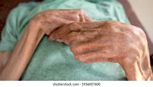 The elderly patient's hand is bent.