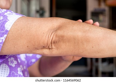 Elderly people woman with dry skin on elbow and arm,Body and health care concept,Wrinkles,Toggle