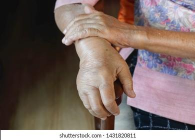 Elderly swollen hand or edema hand